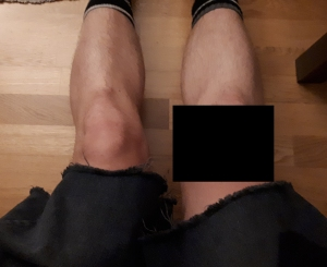 knees_Censored